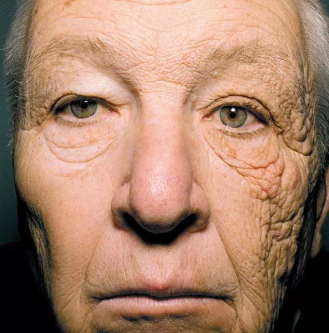 UV sugárzás káros hatásai